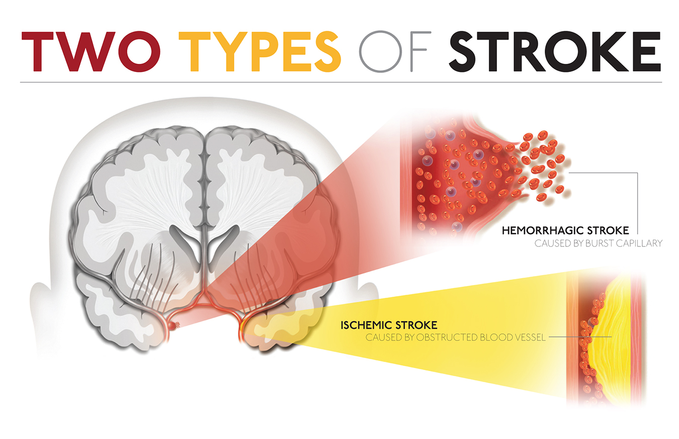 Treating brain stroke photo 7