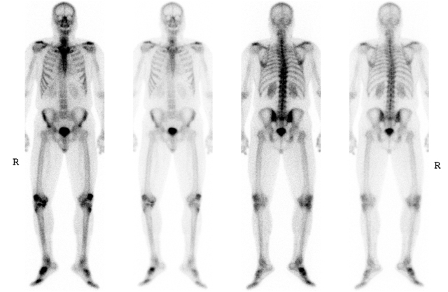 A current bone scan done using Tc99m-MDP, an imaging agent developed at Upstate in the 1970s. Courtesy Department of Radiology, Division of Nuclear Medicine