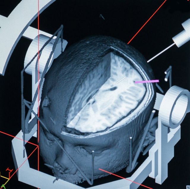This 3-D computerized image shows the inside of the patient's brain and the 3.1-millimeter opening -- a bit larger than the tip of a pen -- for the laser.