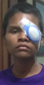 A 15-year-old boy, shortly after surgery to treat bilateral cataracts.