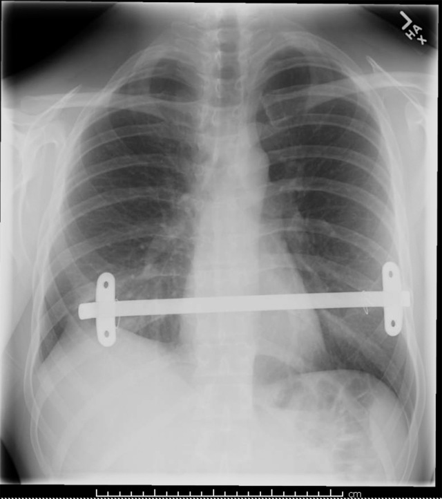 This X-ray shows a surgically inserted metal bar that will help to correct a sunken chest, a somewhat rare condition.