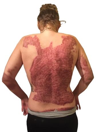 Bridge shows her skin grafts prior to laser treatments. (PHOTO BY SUSAN KAHN)