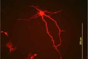 Above and below, nerve cells (from the lab of Wei-dong Yao, PhD)