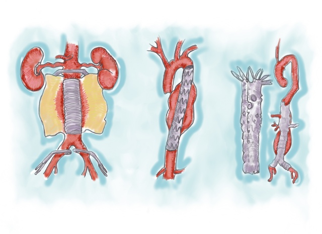 Three ways of repairing abdominal aortic aneurysms: (from left) traditional open surgical repair, endograft for AAA repair, fenestrated endograft.