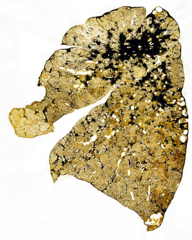 Slice of a coal miner's lung. Black area shows progressive massive fibrosis.