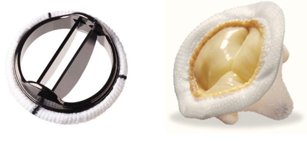 replacement mitral valves