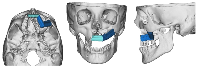 Computer model of Michele Giblin's reconstructive surgery. The areas in shades of blue show what was rebuilt. (courtesy of Jesse Ryan, MD)