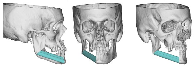 Computer model of Paul Desimone's reconstructive surgery. (courtesy of Jesse Ryan, MD)
